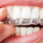invisible braces in lahore
