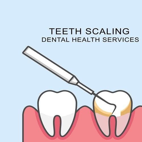Teeth Scaling in Lahore